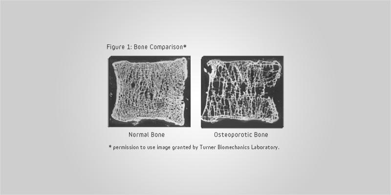 no bones ci 4 No Bones About It: How Cannabis May Combat Bone Diseases
