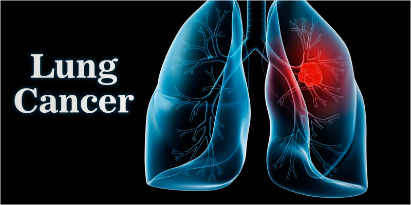 effect of smoking on lungs essay Smoking the number one cause of lung cancer essay while the free essays can give you inspiration for writing, they cannot be used 'as is' because they will not meet your assignment's requirements if you are in a time crunch, then you need a custom written term paper on your subject (smoking the number one cause of lung cancer).