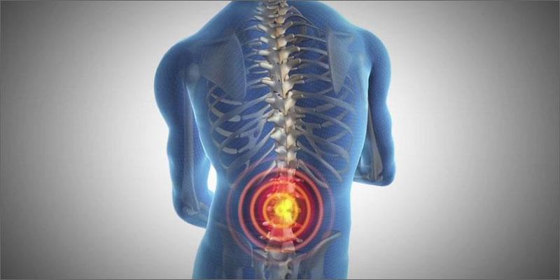 cannabis vs lupus prescription back pain Cannabis vs. Lupus
