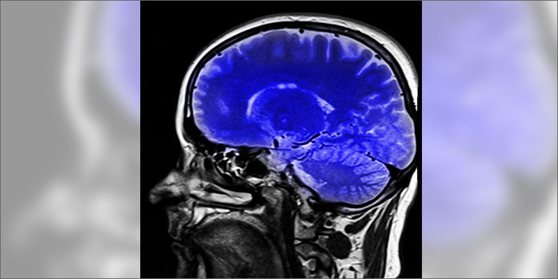 1 does cannabis heal concussions Does Cannabis Heal The Brain After A Concussion?