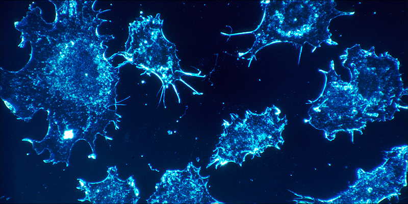 Over 100 Peer 3 Over 100 Peer Reviewed Studies Confirm Cannabis Kills Cancer Cells
