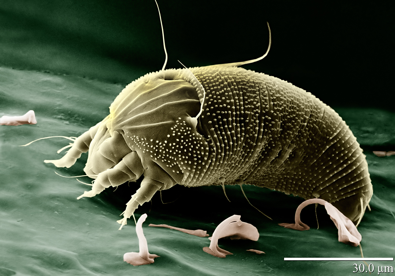 hemp russet mite 4 of 5 The invisible pest thats destroying cannabis crops