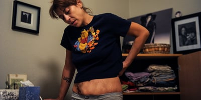 Is Cannabinoid Hyperemesis Syndrome Real?